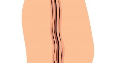 how to draw scars image